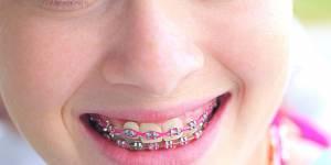 Fabriquer soi-même son appareil dentaire : la nouvelle tendance qui sévit chez les ados