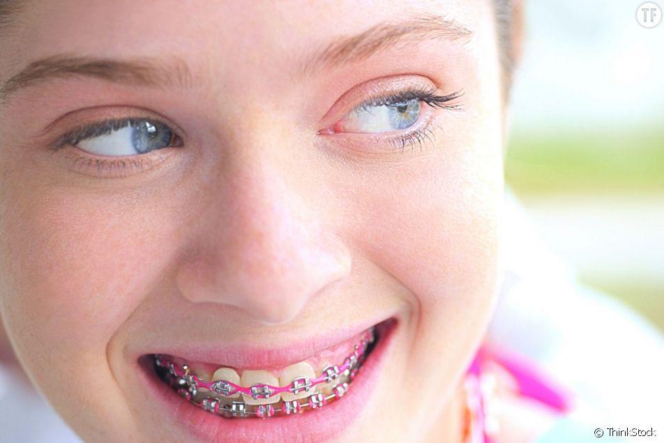 La mode du DIY s'étend à l'orthodontie chez certains ados.
