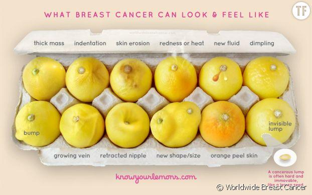 """La campagne """"Know Your Lemons"""" aide à détecter les symptômes du cancer du sein"""