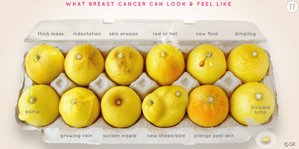 "La campagne de prévention contre le cancer du sein ""Know Your Lemons"""