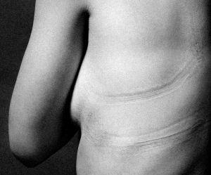 Il photographie les marques laissées par les vêtements pour dénoncer les diktats