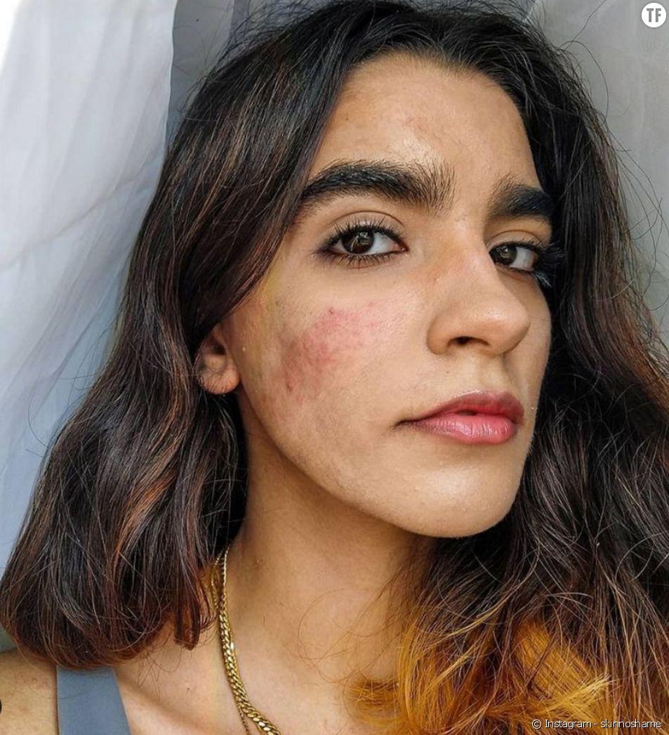 Constanza Concha, la jeune femme qui milite pour l'acceptation de l'acné (@skinnoshame)