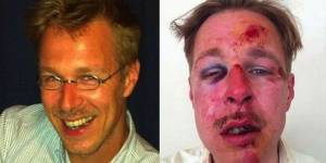 Homophobie : une photo choc pour dénoncer une violence grandissante