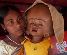 Roona Begum, la fillette indienne hydrocéphale, opérée avec succès
