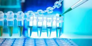 FTO : le gène responsable de l'obésité découvert