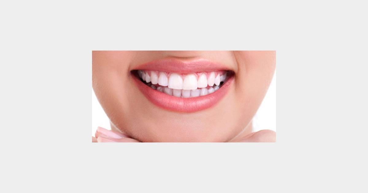 Blanchiment des dents les produits les plus dangereux retir s du march terrafemina - Refrigerateur le plus silencieux du marche ...