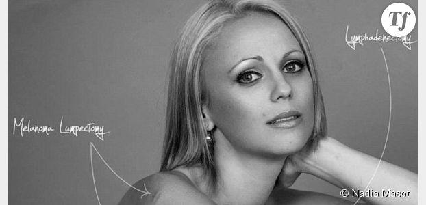 Cancer du sein : une survivante exhibe ses cicatrices pour mobiliser contre la maladie
