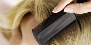 Les shampoings anti-poux et anti-lentes inefficaces ? Voici les remèdes naturels