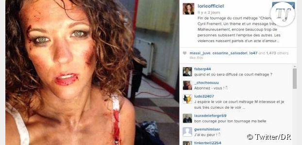 Lorie : totalement défigurée sur Instagram, pourquoi ? (Photo)