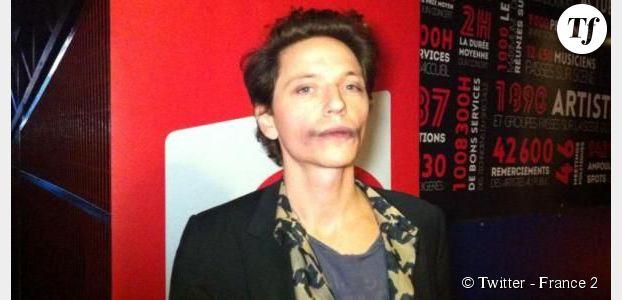 Victoires de la musique 2015 : Raphaël enflamme le web avec ses bleus sur le visage