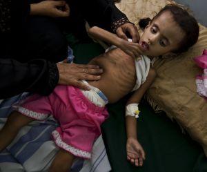 Yémen : cette guerre oubliée qui fait mourir de faim des centaines de milliers d'enfants