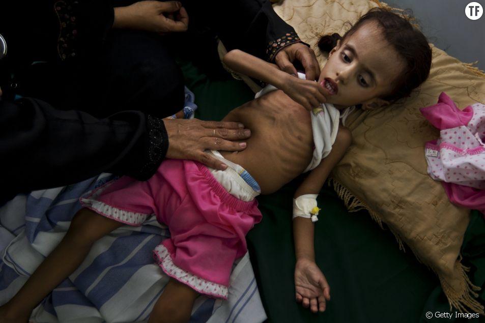 Famine au Yémen : la guerre oubliée qui fait mourir de faim des centaines de milliers d'enfants