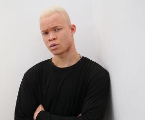 Menacé de mort en Sierra Leone, ce jeune albinos devient top model