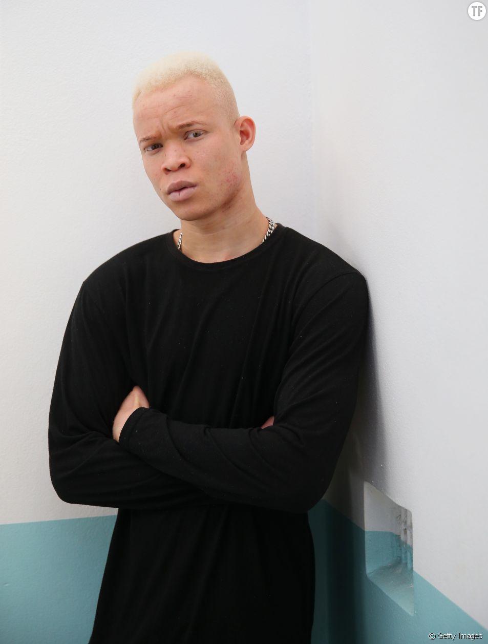 Le mannequin albinos Weah Bangura