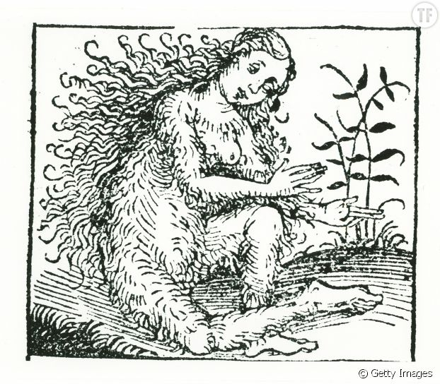 """Femme hirsute. Extrait de """"La chronicle de Nuremberg"""", livre sorti en 1493 en Allemagne."""