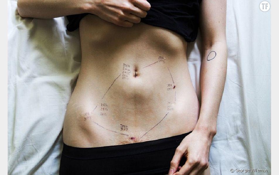 "Image ""2014-2017"", série ""Endometroisis"", Georgie Wileman"