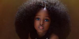 """La fillette """"la plus belle du monde"""" a 5 ans : pourquoi cela pose problème"""