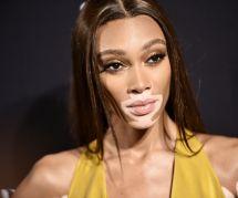 La mannequin Winnie Harlow défilera pour Victoria's Secret (et c'est réjouissant)