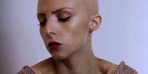 """""""Tes cheveux ne te définissent pas"""" : ces photos magnifient les femmes chauves"""