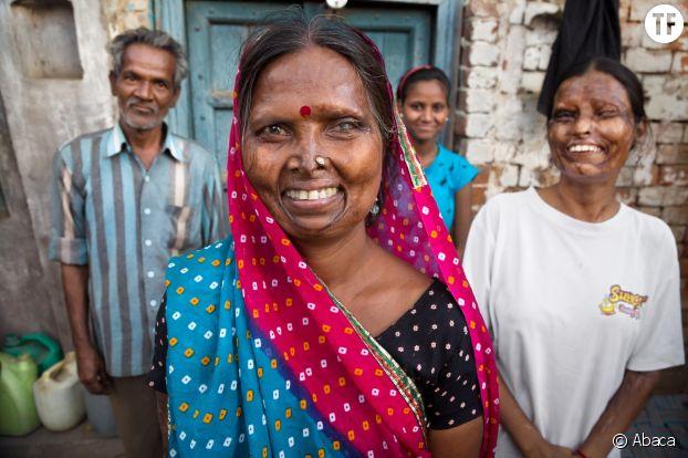 Gheeta, victime d'une attaque à l'acide à Agra, en Inde