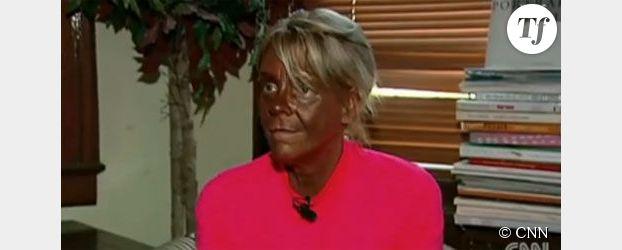 Une Américaine accusée d'emmener sa fille au salon de bronzage (Vidéo)