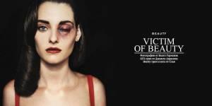 Violences conjugales : la femme battue comme image de mode