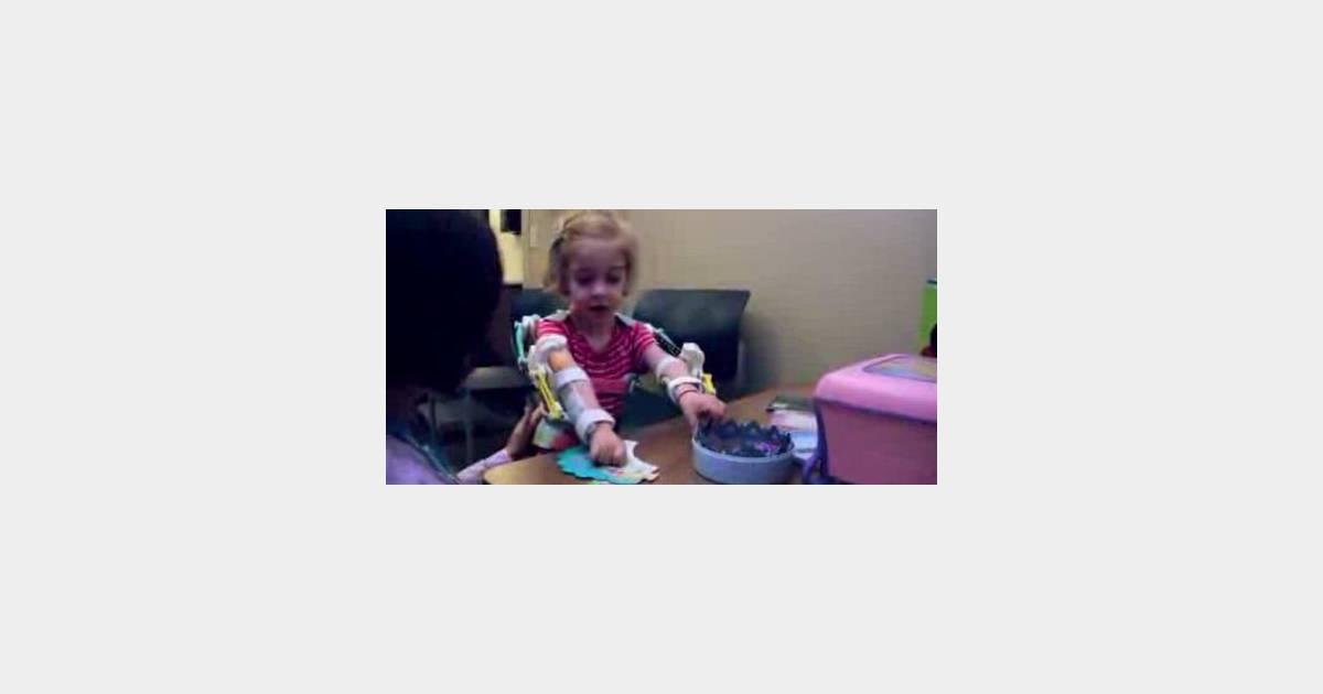 Une enfant d couvre l 39 usage de ses bras gr ce une - Imprimante 3d enfant ...