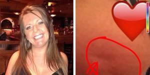 Ce selfie de sein pourrait sauver des vies