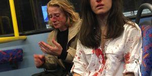 Ce couple de lesbiennes a été tabassé pour avoir refusé de s'embrasser