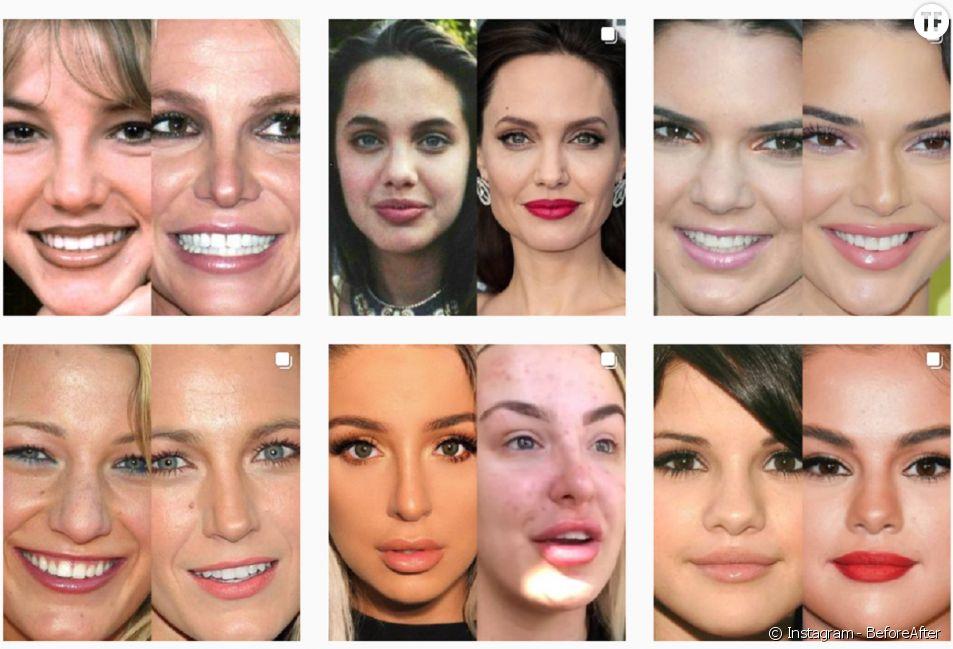 """""""Celebrities BeforeAfter"""", l'un des comptes-stars recueillant les """"transformations physiques"""" des célébrités."""