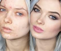 Insultée parce qu'elle a de l'acné, cette blogueuse beauté réplique avec force
