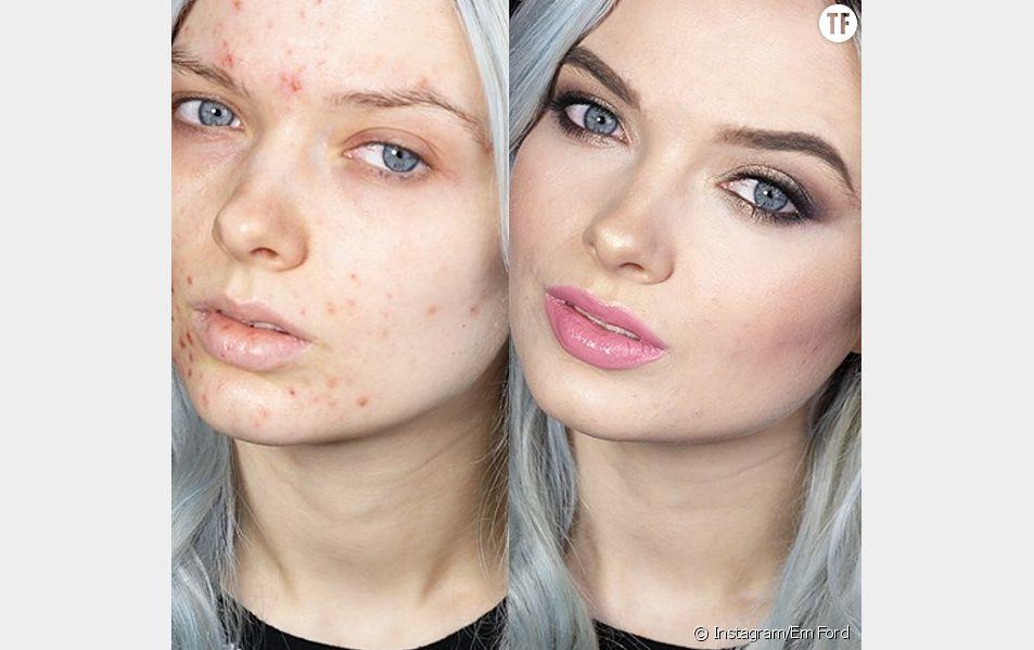 Attaquée à cause de son acné, Em Ford a décidé de clouer le bec à ses haters dans une vidéo