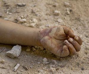 """Alep : """"La pire crise humanitaire du 21e siècle"""""""