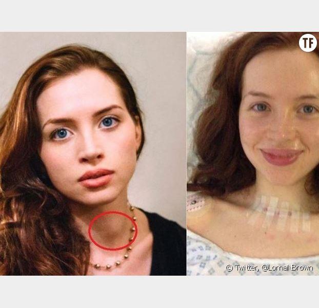 Les photo avant/après son opération de la thyroïde
