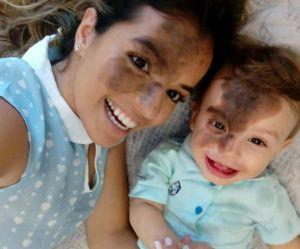 Elle se recrée la marque de naissance de son fils pour l'aider à s'aimer