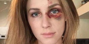 Battue par son compagnon, elle publie une photo de son visage tuméfié
