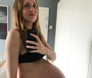 """Cette maman dévoile des photos de son ventre pour montrer """"la réalité"""" de la grossesse"""