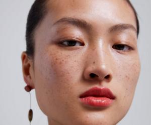 Les taches de rousseur de cette mannequin créent le scandale en Chine