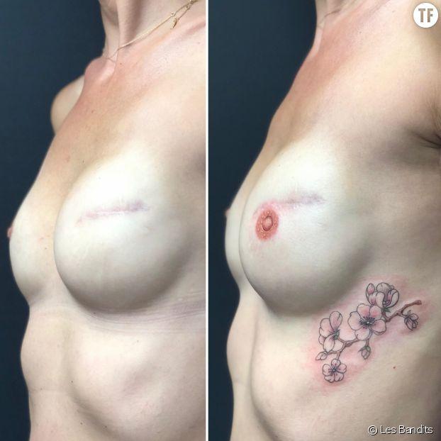 Tatouage de tétons post-cancer du sein par Alexia Cassar