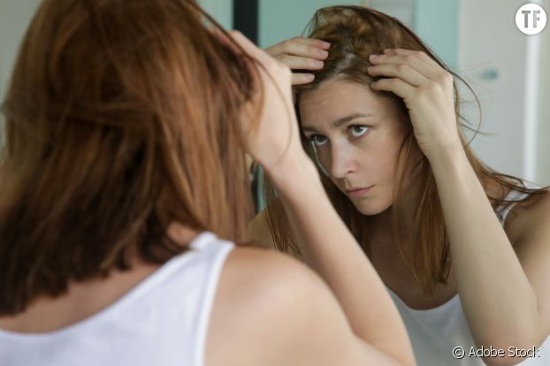 La perte de cheveux post-partum touche la majorité des femmes.