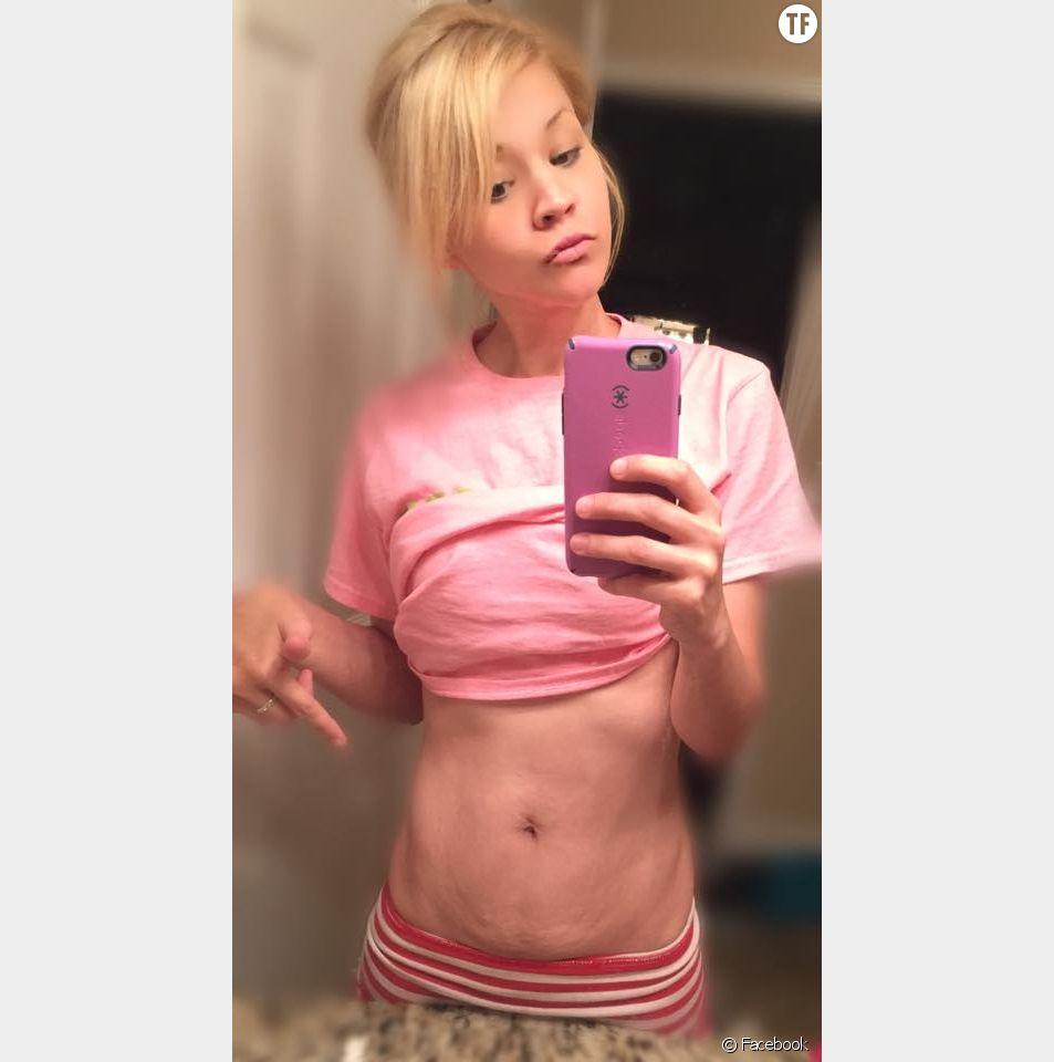 Kimberly Henderson a posté une photo de son ventre post-grossesse sur Facebook