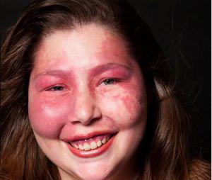 On Beauty : il photographie des malades génétiques pour prouver que la beauté est partout