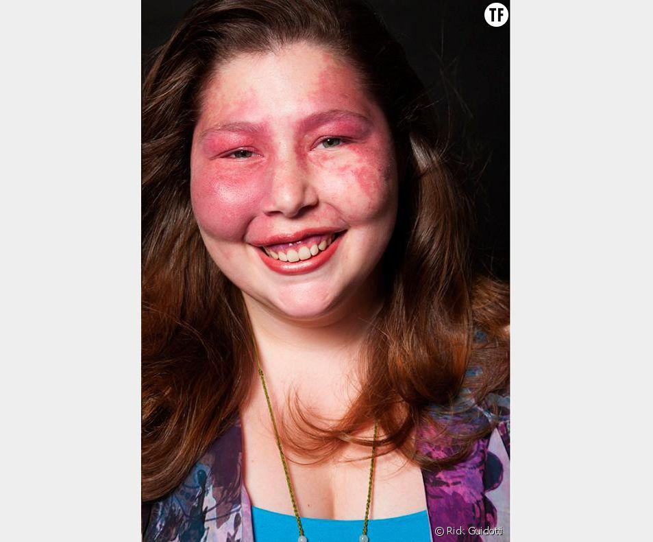 Sarah Kanney, atteinte du syndrome de Sturge-Weber.