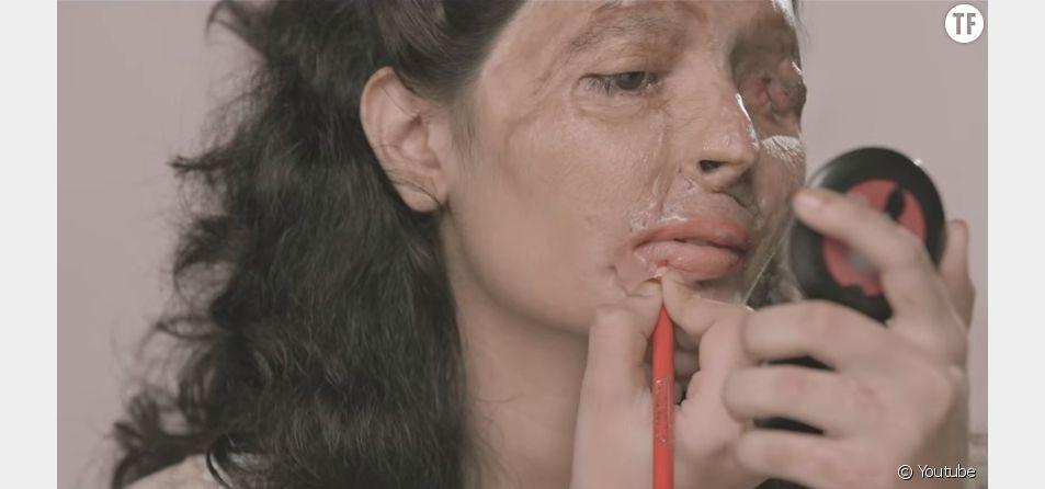 Reshma donne des conseils sur l'art et la manière de se mettre du rouge à lèvres lorsqu'on s'est faite attaquer à l'acide. Mais elle est surtout là pour prévenir du danger de la commercialisation de cette substance chimique.