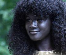 Khoudia Diop : harcelée pour sa couleur de peau, elle devient top-model