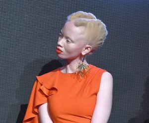 Ces mannequins atteintes d'albinisme qui défient les normes