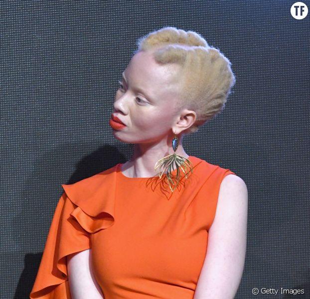 Ces mannequins et activistes atteintes d'albinisme qui défient la norme.