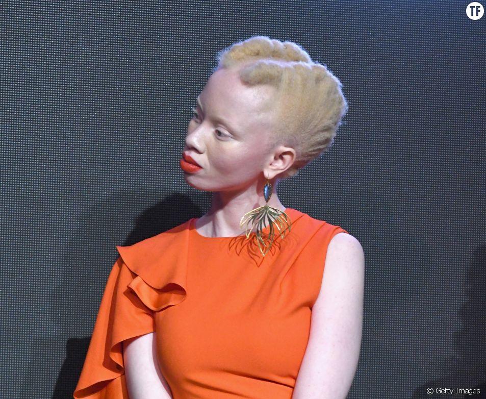 rencontre femme albinos