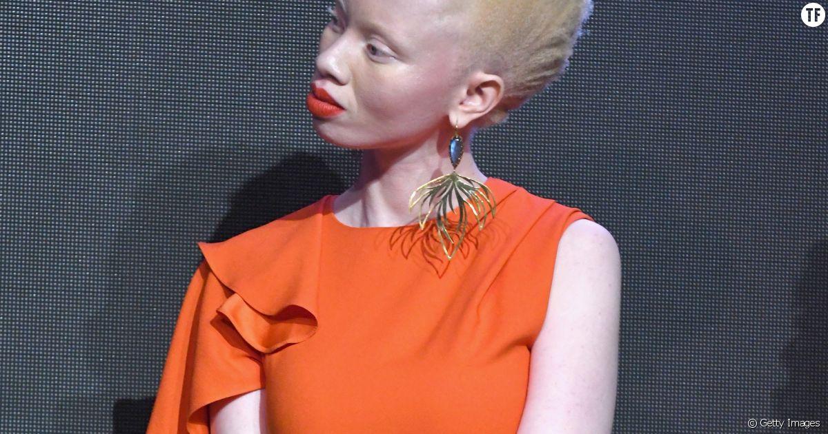 site de rencontre pour albinos