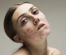 Acné, hyperpigmentation : cette photographe magnifie la peau et ses imperfections